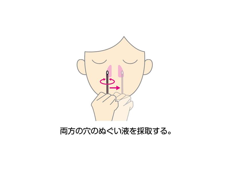 鼻腔ぬぐい液を採取する